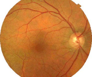 Fundus Camera Healthy Eye